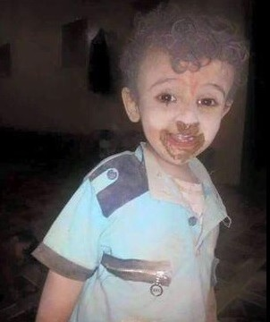 Yemen Child Survives Saudi Bombing